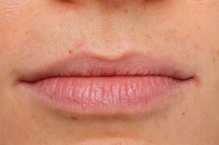 Lippenkontur