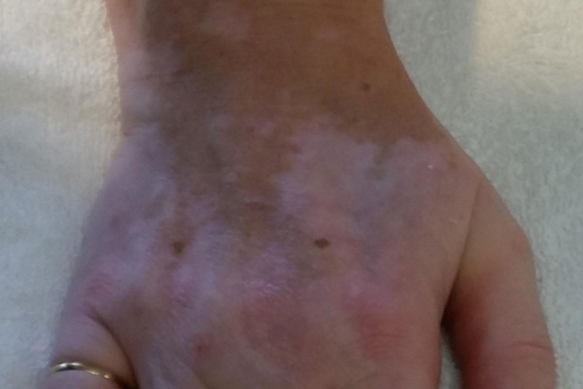 Weissflecken-Krankheit